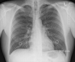 Fumatul crește riscul de infectare cu coronavirus, complică boala și favorizează decesul la pacienții COVID spitalizați